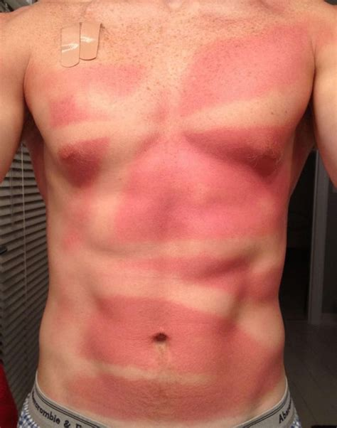 For The Last Time, People, Use Sunscreen!