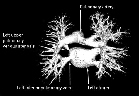 Pulmonary venous stenosis after treatment for atrial